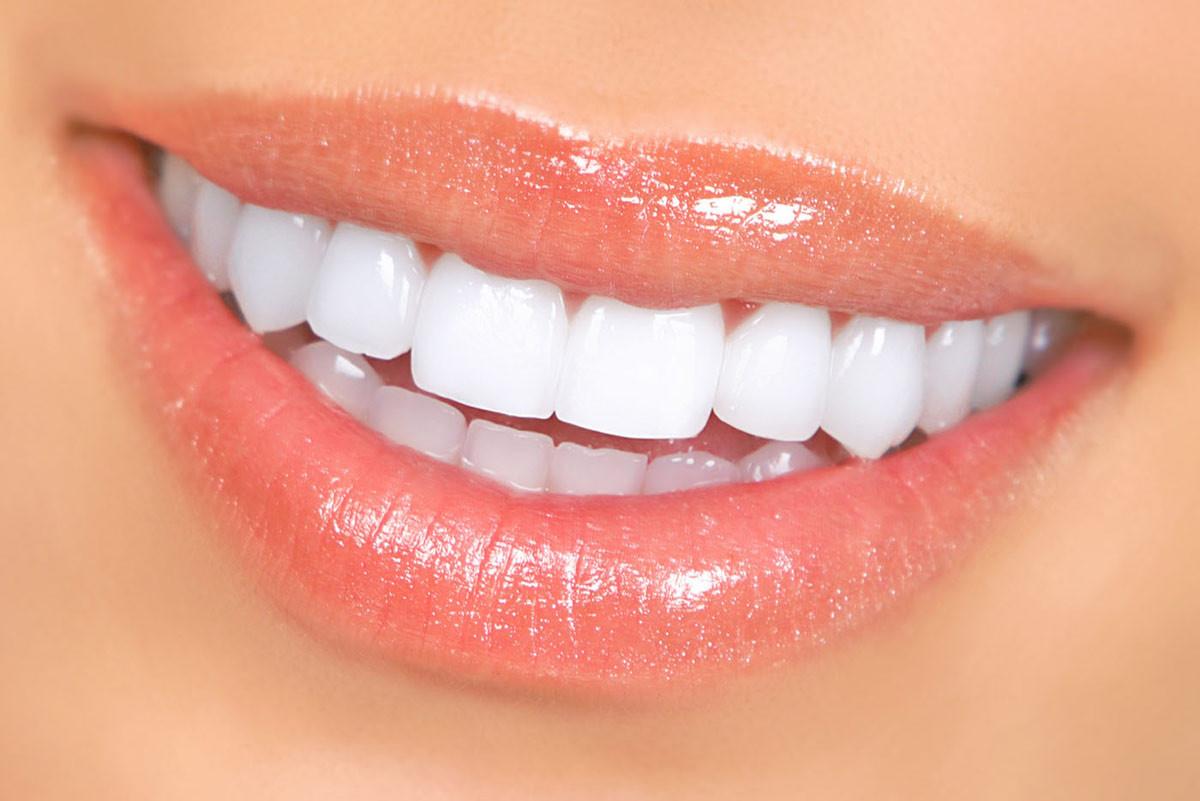 branqueamento-dentario2.jpg