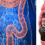 intestino.jpg